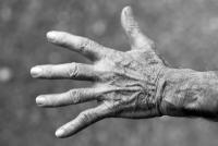 Artrosis o Artritis AM Fisioterapia Castellón